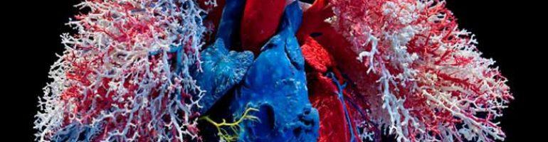 Что такое декстрокардия