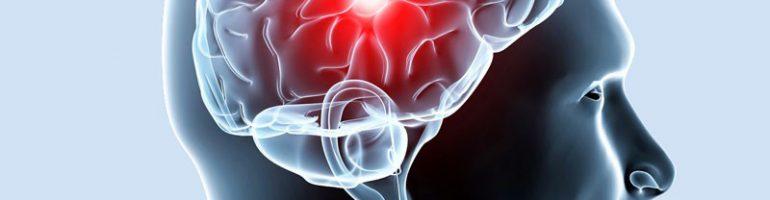 Склероз сосудов мозга головы