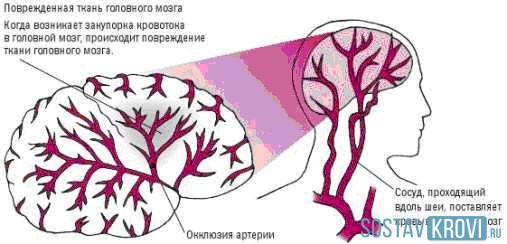 Мозга