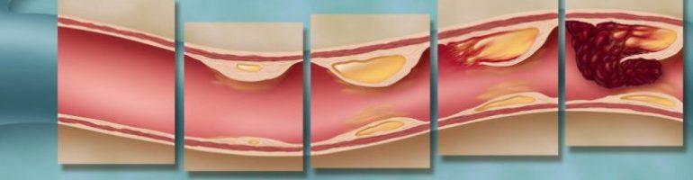 Чем опасны холестериновые бляшки