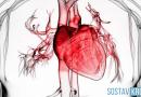 Ишемия миокарда сердечной мышцы