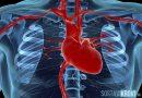 Дефект межпредсердной перегородки мышцы сердца
