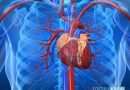 Что такое кардиосклероз сердца