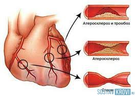 Последствия атеросклероза