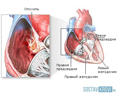 1 173 - Myxoma - a benign heart tumor with dangerous consequences