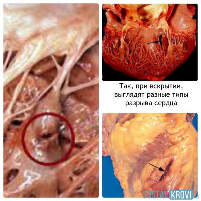 разрыв сердечной мышцы
