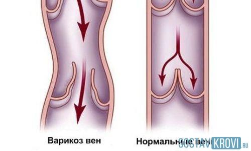 Норма или патология