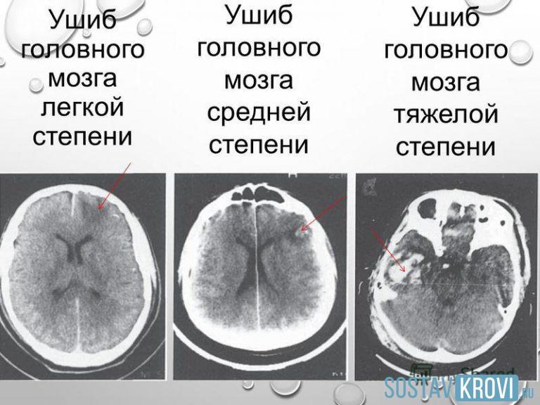 когда ребёнок сотрясение мозга к какой степени тяжести относится резка металла