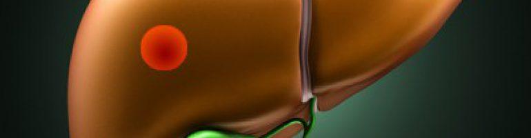 Что такое гемангиома печени