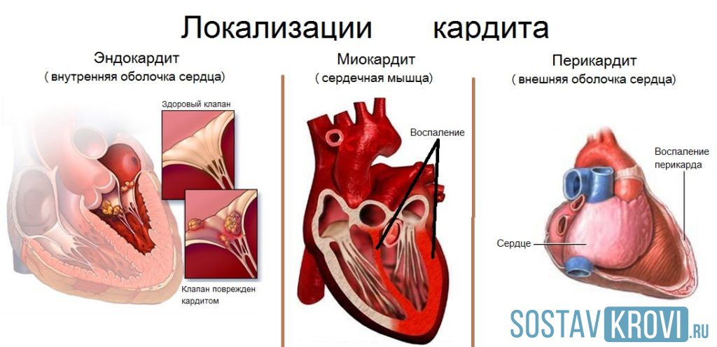 Неревматический