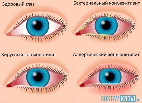 Слизистых глаз