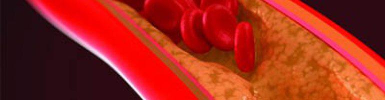 Что такое кальциноз