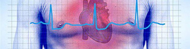 Остановка сердца (асистолия)