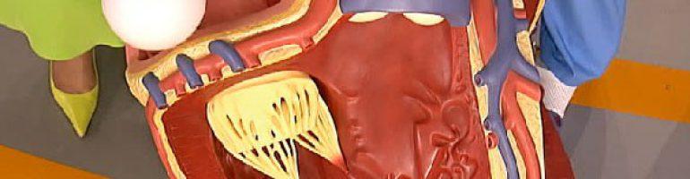 Что такое миксома сердца