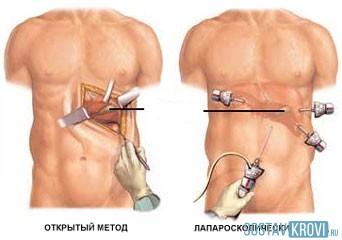 Питание после полосной операции