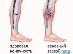 От невроза немеют руки или ноги
