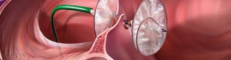 Что это такое аневризма сердца