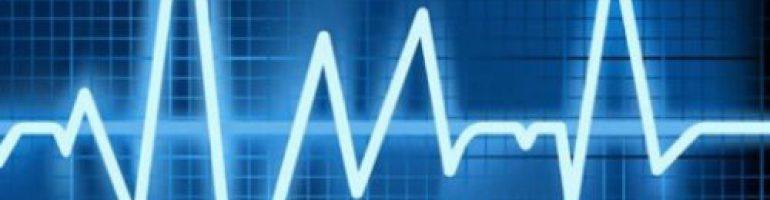 Что это такое синусовая аритмия