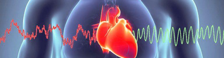 Что это такое тахикардия сердца