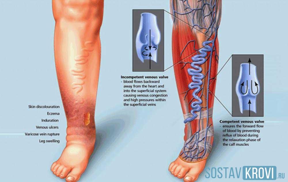 Варикоз тромбоз лечение