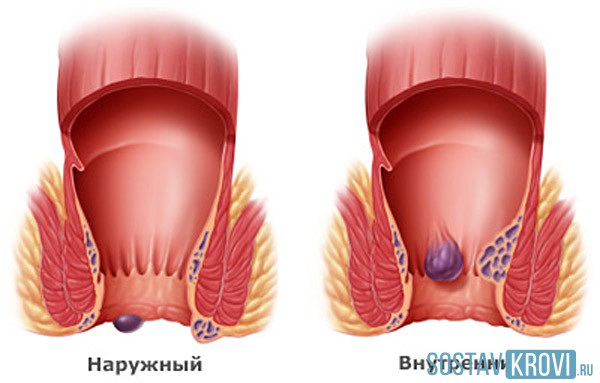 Геморроидального узла