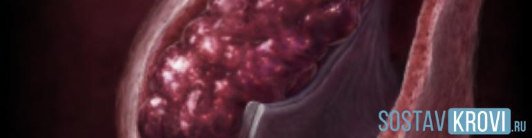 Что такое флеботромбоз