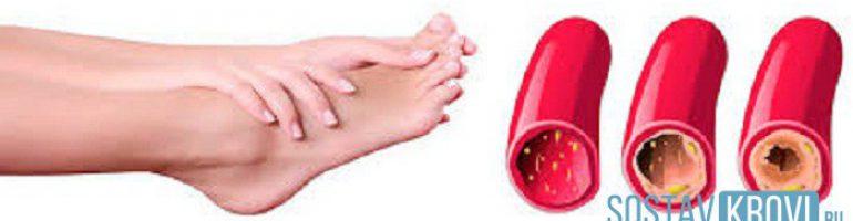 Что такое облитерирующий эндартериит