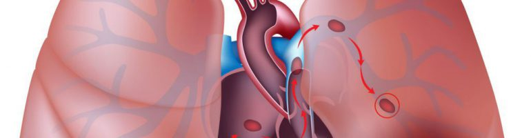 Тромбоэмболия легочной артерии (ТЭЛА)