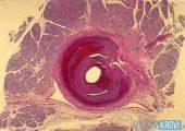 Что такое узелковый периартериит